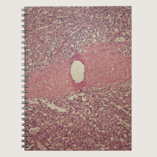 Human spleen with chronic myelogenous leukemia notebook