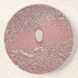 Human spleen with chronic myelogenous leukemia sandstone coaster