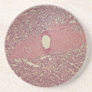 Human spleen with chronic myelogenous leukemia sandstone coaster