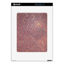 Human spleen with chronic myelogenous leukemia skin for iPad