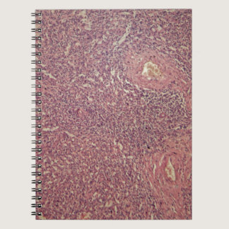 Human spleen with chronic myelogenous leukemia spiral notebook