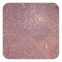 Human spleen with chronic myelogenous leukemia square sticker
