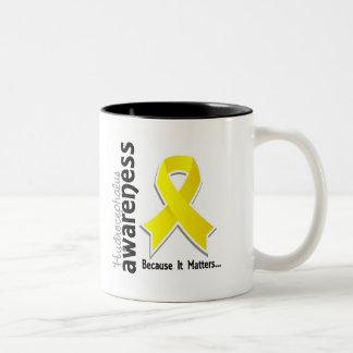 Hydrocephalus Awareness 5 Two-Tone Coffee Mug