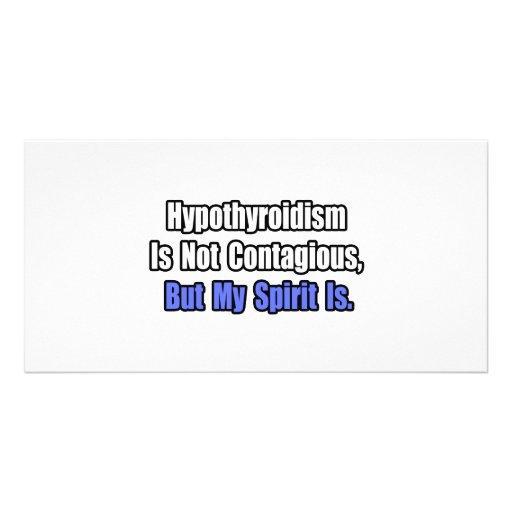 Hypothyroidism Is Not Contagious.. Photo Card