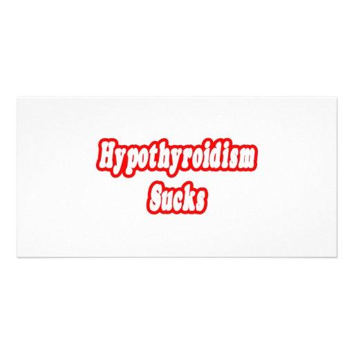 Hypothyroidism Sucks Personalized Photo Card