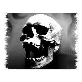 Hysteriskull que ríe el cráneo humano tarjeta postal