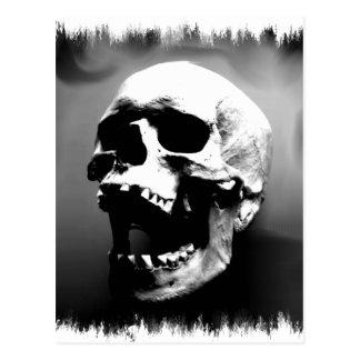 Hysteriskull que ríe el cráneo humano tarjetas postales