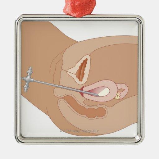 Hysteroscopy Procedure Square Metal Christmas Ornament