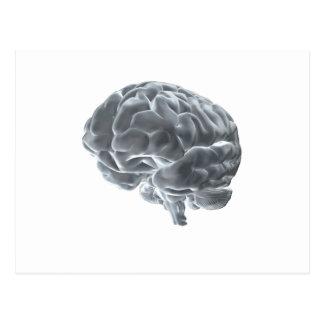 I got brains! postcard
