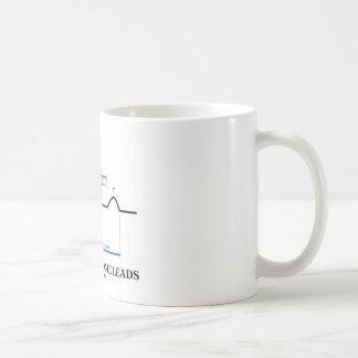 I Just Need Some Leads (ECG/EKG Heartbeat) Coffee Mug