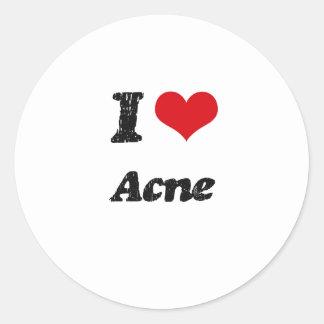 I Love Acne Stickers