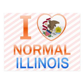 I Love Normal, IL Post Card