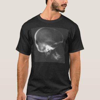 I need my  head examined T-Shirt