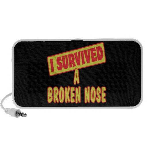 I SURVIVED A BROKEN NOSE LAPTOP SPEAKERS