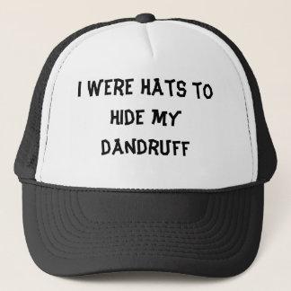 I were hats to hide my dandruff