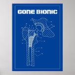 IDO BIONIC - poster del reemplazo de la cadera