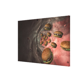 Illustration of a blood vessel with burgers gallery wrapped canvas