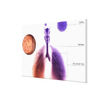 Illustration of an asthma attack from pollen canvas print