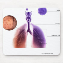 Illustration of an asthma attack from pollen mouse pad
