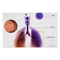 Illustration of an asthma attack from pollen poster