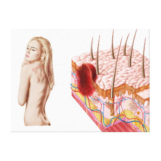 Illustration Of An Atypical Growth On The Skin Canvas Print