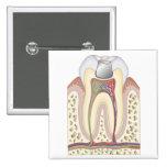 Illustration of Dental Filling Button