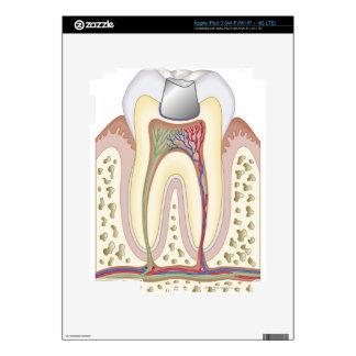 Illustration of Dental Filling Decal For iPad 3