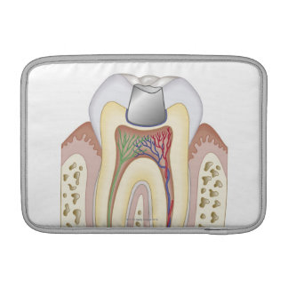 Illustration of Dental Filling MacBook Sleeves