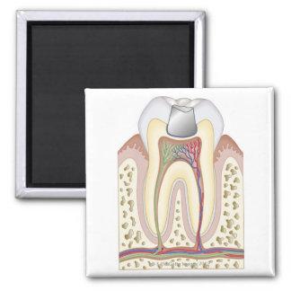 Illustration of Dental Filling Refrigerator Magnets
