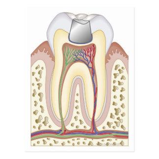 Illustration of Dental Filling Postcard