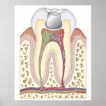 Illustration of Dental Filling Poster