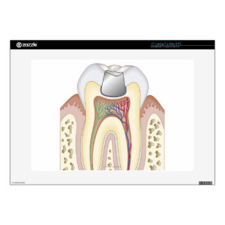 Illustration of Dental Filling Decal For Laptop