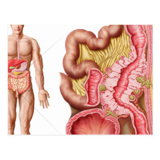 Illustration Of Diverticulosis In The Colon Postcard