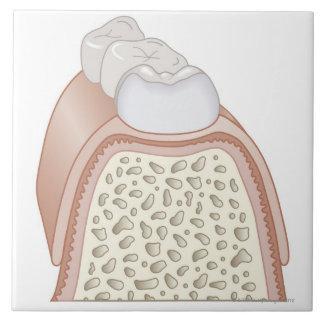 Illustration of Teeth Large Square Tile