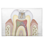 Illustration of Tooth Decay Place Mats