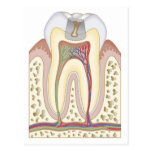 Illustration of Tooth Decay Postcard