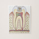 Illustration of Tooth Decay Puzzle