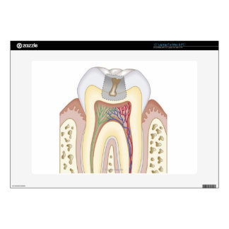 """Illustration of Tooth Decay 15"""" Laptop Skin"""