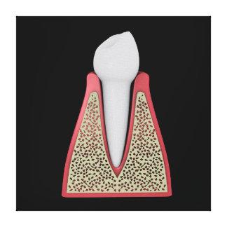 Imagen conceptual del diente humano 1 impresión en lienzo