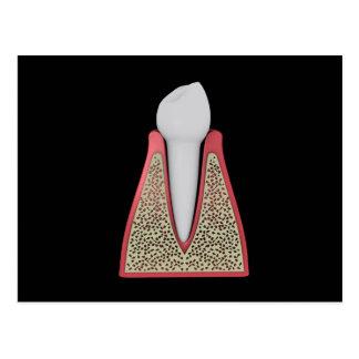 Imagen conceptual del diente humano 1 tarjetas postales