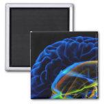 Imagen de la radiografía del cerebro iman