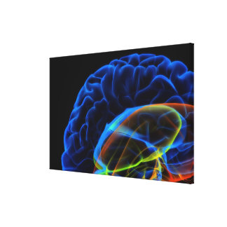 Imagen de la radiografía del cerebro impresión en lona