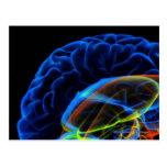 Imagen de la radiografía del cerebro tarjetas postales