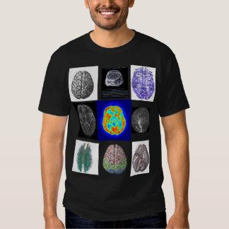 Imágenes del cerebro remera