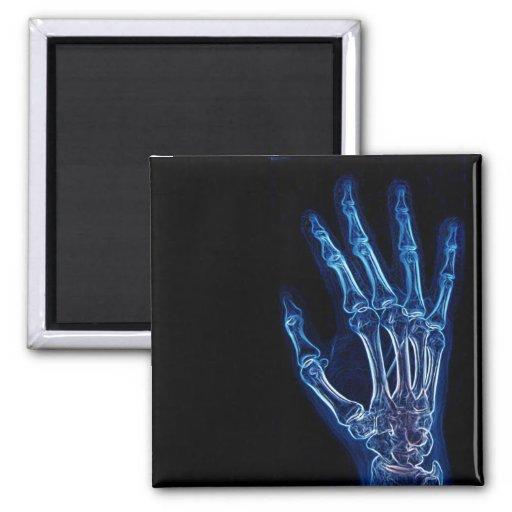Imán azul de la radiografía de la mano