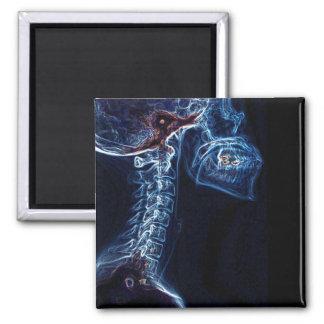 Imán azul del cuadrado de la radiografía de la C-e