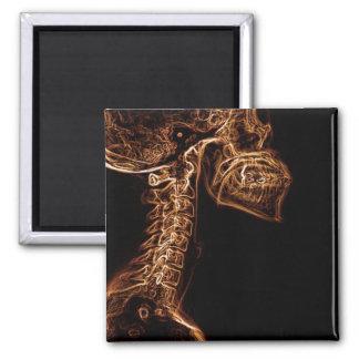 Imán del cuadrado de la radiografía de la C-espina