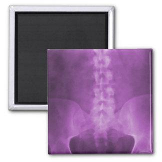Imán púrpura del arte de la radiografía de Digitac