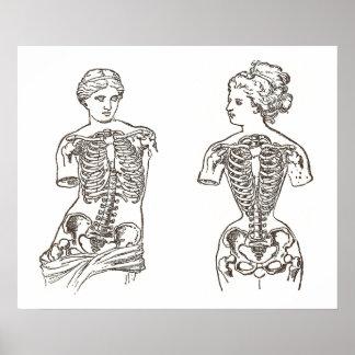 Impacto físico de la impresión médica de los corsé impresiones