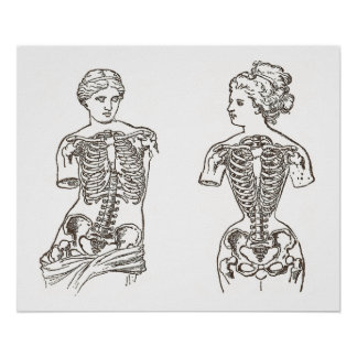 Impacto físico de la impresión médica de los corsé póster